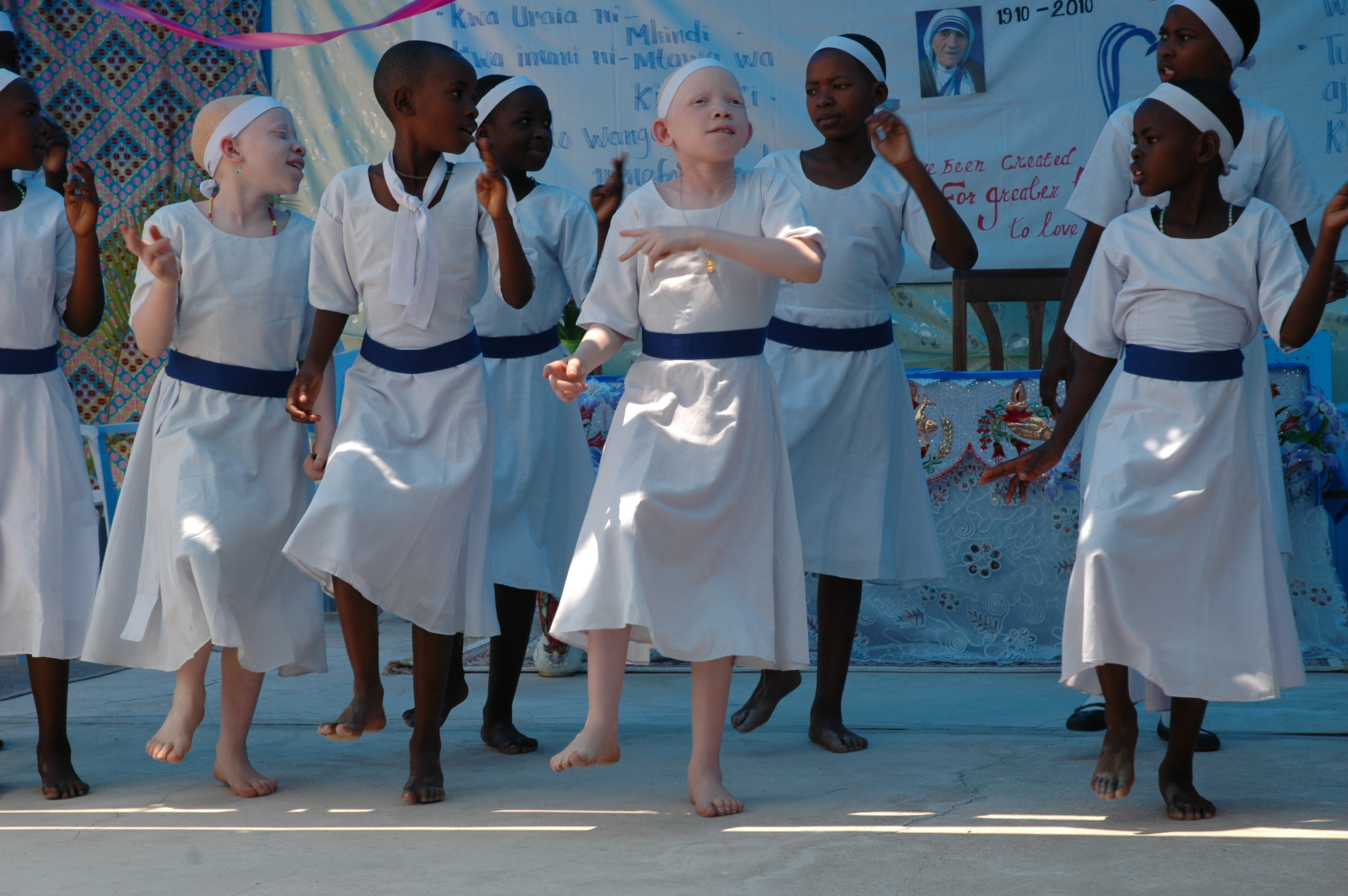 Dancing Albino Girls